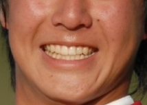 石川遼 15歳当時の前歯
