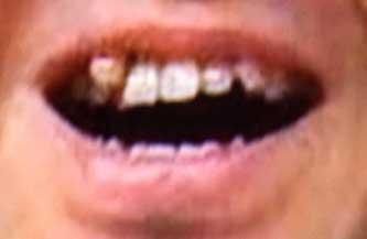 土田晃之 前歯の写真