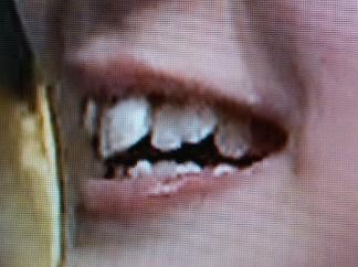 松澤千晶 前歯