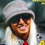 DJ KOOさんの前歯や歯並び(歯抜け・変色)