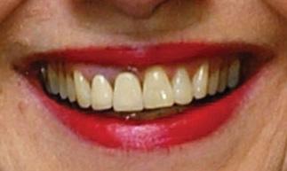 ヒラリー・クリントン 前歯