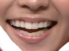出水麻衣アナの前歯