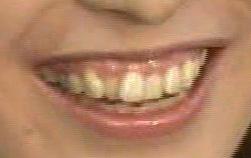 小椋久美子 前歯