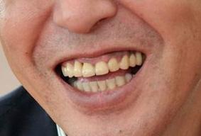 山路徹 前歯