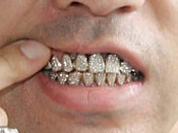 nigo 前歯