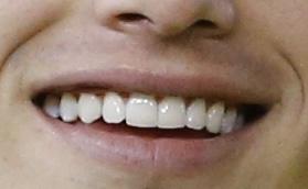 ハメス・ロドリゲス 前歯