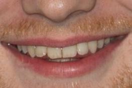 Ed Sheeran 歯