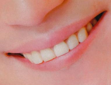 上地雄輔 前歯