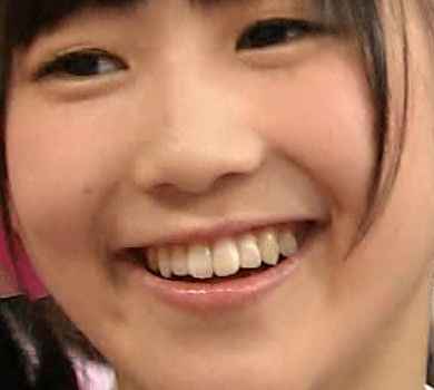 西野未姫 前歯