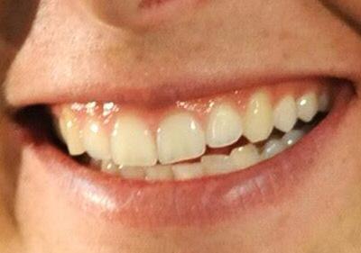 シャラポア選手の前歯