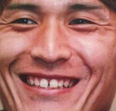 青山敏弘 すきっ歯