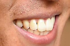 長谷部誠の前歯