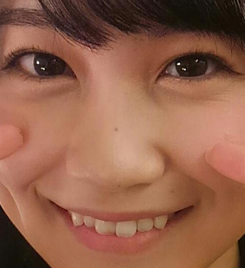 小嶋真子 歯並び