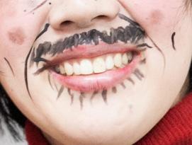中野聡子 前歯