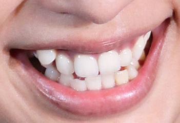 中島美嘉 前歯(八重歯)