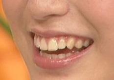 成海璃子 前歯