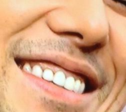 西島秀俊 前歯