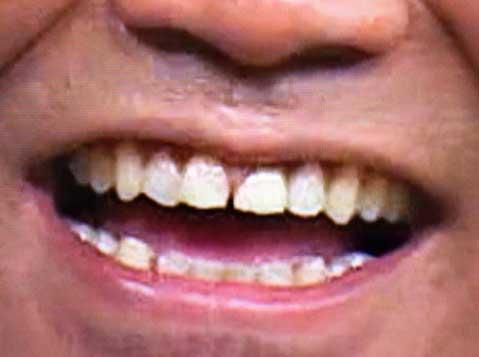 カンニング竹山 差し歯