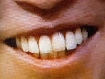 武豊 前歯