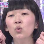 川村エミコさんの前歯の画像(インプラント歯列矯正)