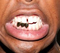 タイラー・ザ・クリエイター 前歯