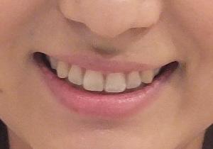 宇賀なつみ 前歯