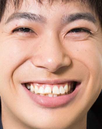 渡辺大知 前歯