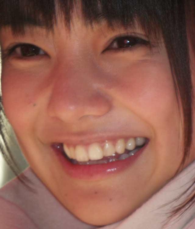 倉科カナ 前歯