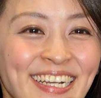 田中理恵 歯