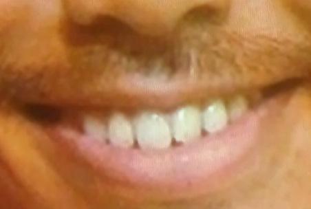 EXILE AKIRA 前歯