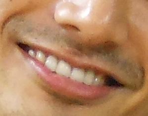 EXILE KENCHI 前歯
