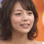 相武紗季さんの前歯や歯並びを批評(歯列矯正で捻転歯解消)