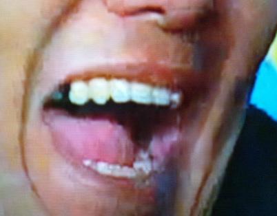 伊達みきお 前歯