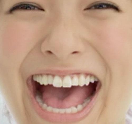 榮倉奈々 前歯