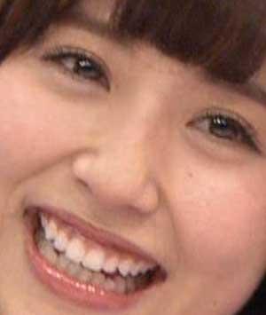 衛藤美彩 前歯の写真