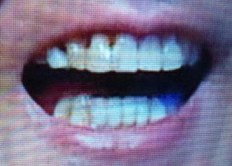 白竜 前歯