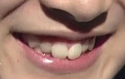橋本楓 前歯