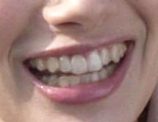 ホラン千秋 前歯