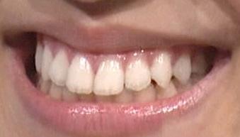 堀未央奈 前歯