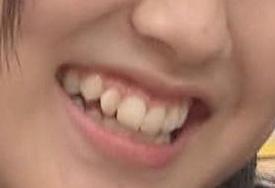 星野みなみ 前歯