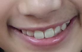 井頭愛海 前歯