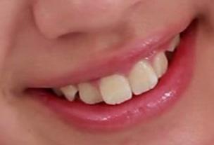 井之上史織 前歯