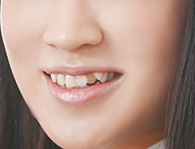 犬山紙子 八重歯