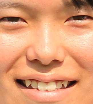 勝みなみ 前歯の写真
