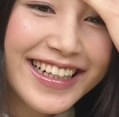 吉川友 前歯