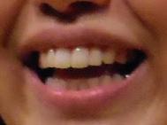 小出真保 銀歯 前歯