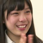 小嶋菜月さんの前歯の画像(左の中切歯が曲がっている)