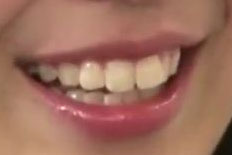 小嶋菜月 前歯