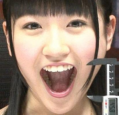 前島亜美 歯