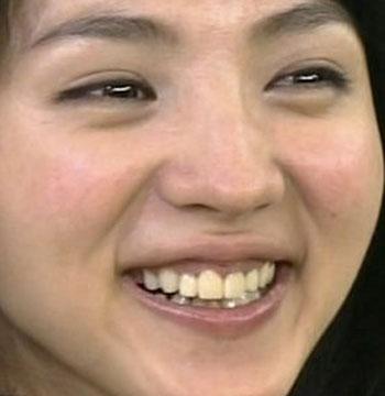 満島ひかり 前歯